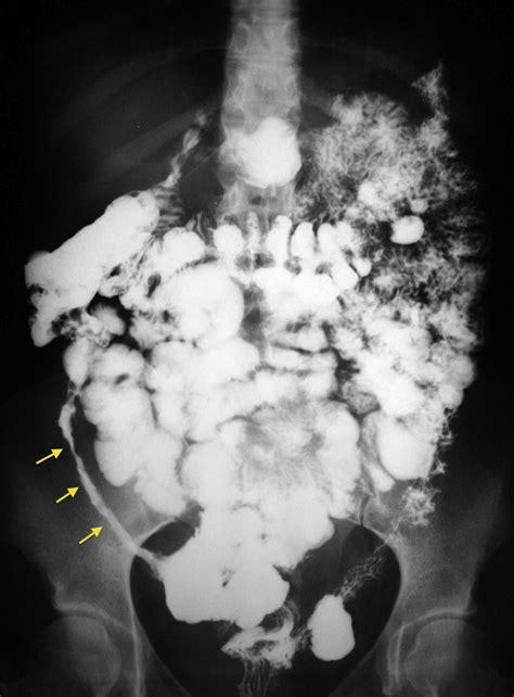 gas x crohns disease crohn disease barium follow through 2 radiology at