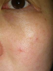 small skin colored bumps on small itchy bumps on skin breeds picture