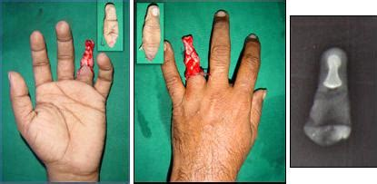 Wedding Ring Injury by Ring Avulsion Injuries Orthobullets