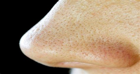 Boots Scrub Your Nose In It Twominute T Zone Detox Scrub by Are You Frustrated From The Blackheads On Your Nose Here S