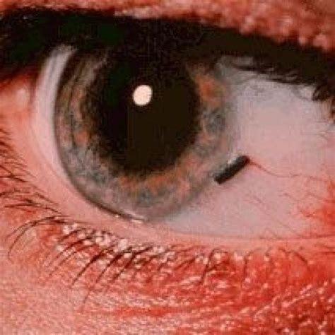 eye injury oakley safety glasses hubpages