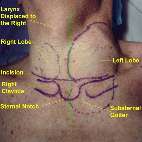 Free Find Substernal Goiter Surface Anatomy Imaging And Surgical Pictures