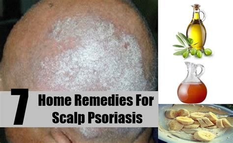 7 home remedies for scalp psoriasis treatments