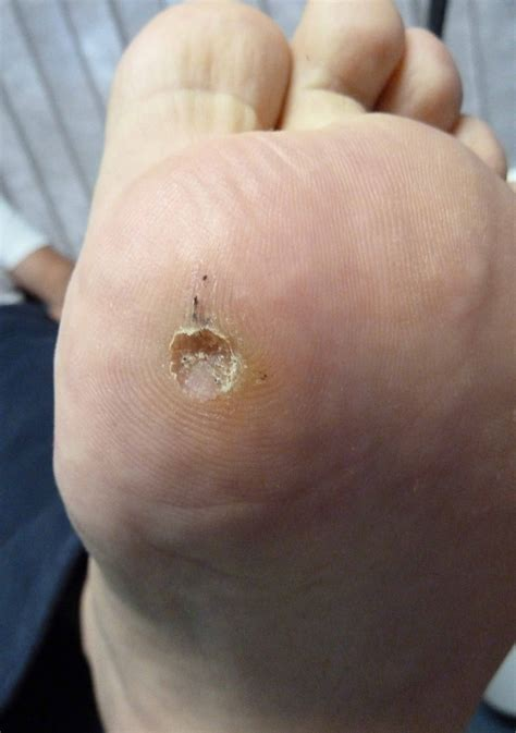 What Causes A Planters Wart by What Cause Plantar Wart Pictures Photos