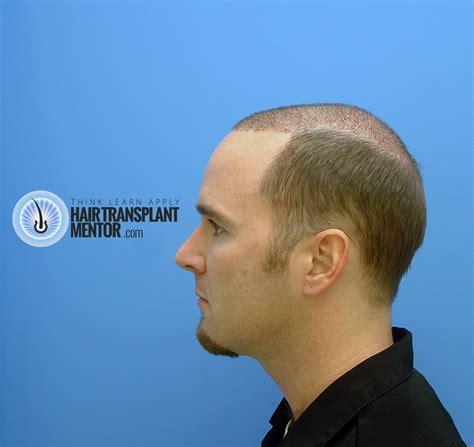 transplant hair second round draft transplant hair second round draft transplant hair