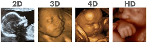 new 3d dad girl gif 3d 4d ultrasound ft lauderdale florida 4d picture