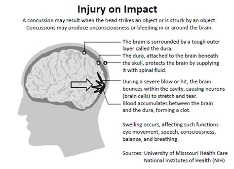 sports concussion facts and symptoms mybraintest