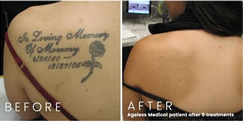 tattoo removal fort lauderdale laser removal ageless fort lauderdale