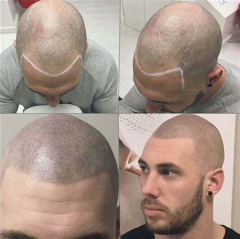 male pattern baldness tattoo skalp offers an affordable non surgical solution to all