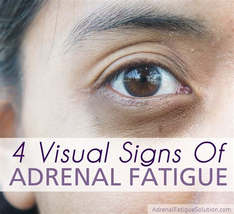 Eye Detox Symptoms by 4 Visual Signs That You Could Adrenal Fatigue