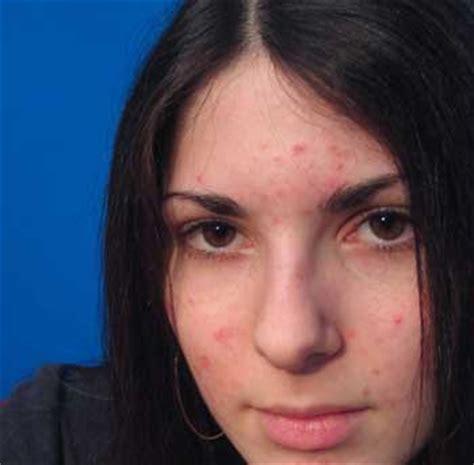 cah kesesi ayutea faktor penyebab kulit wajah menjadi