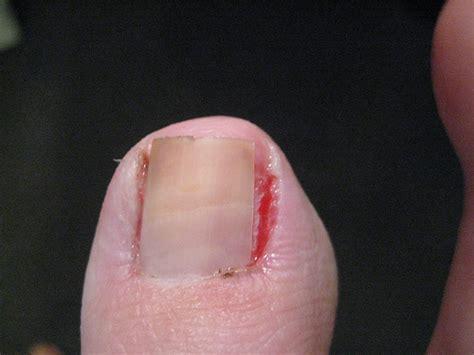 Removing Ingrown Toenail At Home by Day 3 Post Ingrown Toenail Removal Surgery Flickr