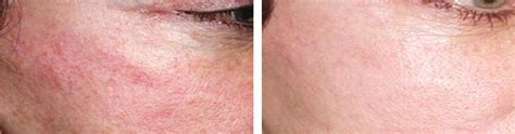 pulsed light hair removal pulsed light ipl pulsed light therapy