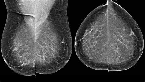 mammogram images the radiology assistant bi rads for mammography and