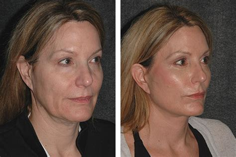 45 year old woman before and after surgery 45 year old woman before and after surgery mini face lift