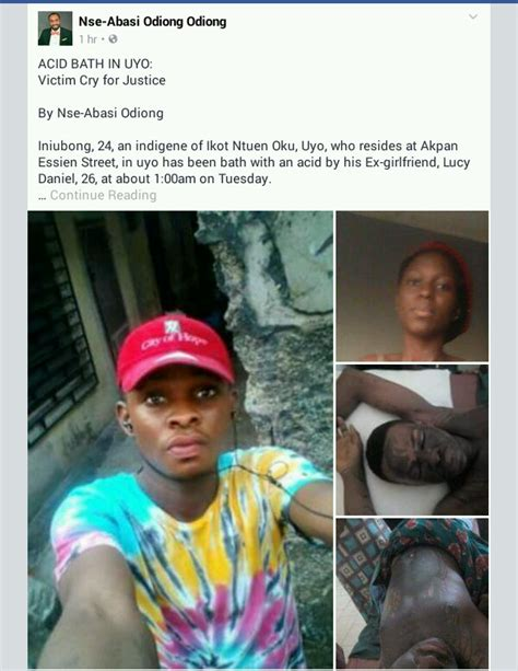 Acid Boyfriend pours acid on ex boyfriend in akwa ibom for dumping pics crime nigeria