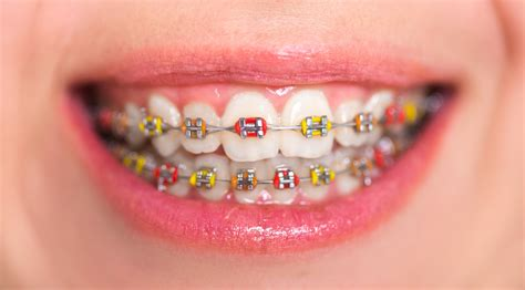 braces color ideas color braces idea los angeles ca cosmetic dentist