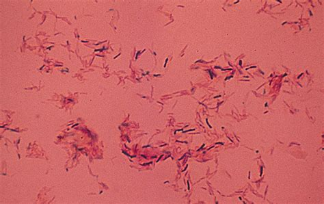 tattoo infection mycobacterium image gallery mycobacterium chelonae