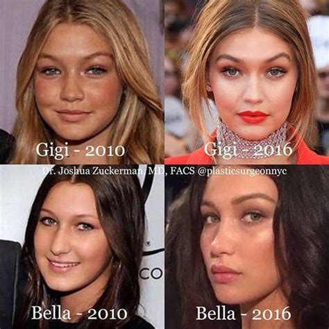 gigi hadid lip injections both gigi and bella hadid before and after plastic surgery