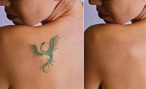 neo mag light tattoo removal reviews removal using light removal