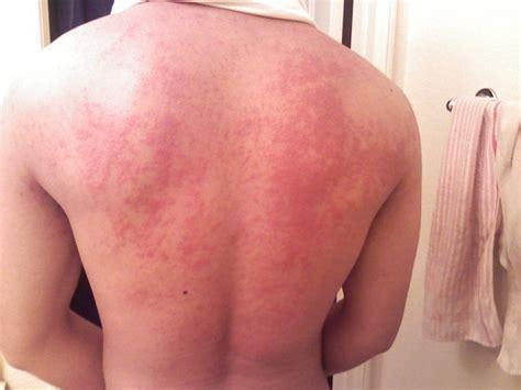 farmaci per intossicazione alimentare urticaria colinergica la alergia al ejercicio el