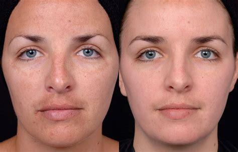 chemical peels castleknock cosmetic clinic dublin