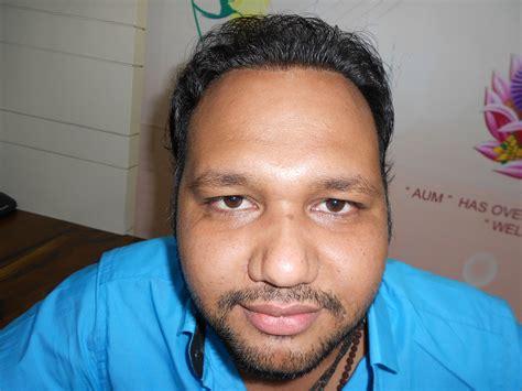 ravi shastri hair transplant spiral hair transplant