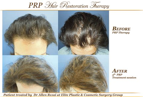 can platelet rich plasma stop hair loss and grow new hair prp treatment for rejuvenation and hair restoration