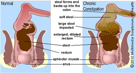 How To Up Impacted Stool by Dr Sherazi Constipation