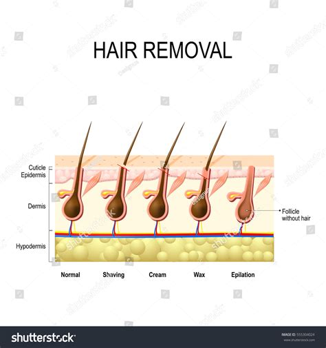 personal hair removal options hair removal wax cream epilation shaving stock vector