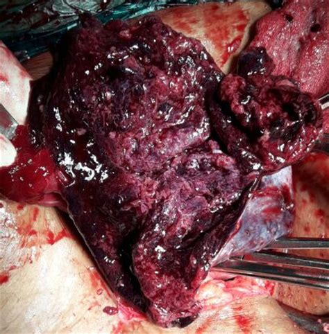 cyst burst journal of postgraduate gynecology obstetrics ruptured granulosa cell tumor of the
