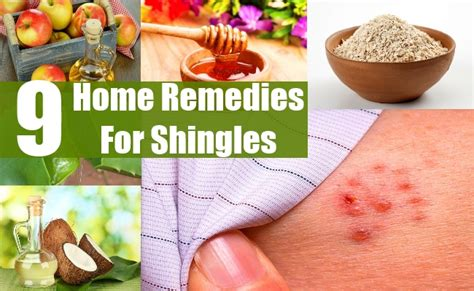 9 home remedies for shingles diy health remedy