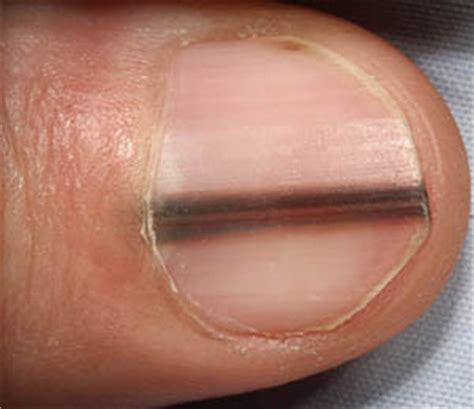 toe cancer subungual melanoma how to spot melanoma on toenails youbeauty