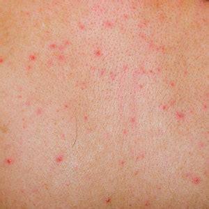 tattoo hives treatment eczema rash and skin allergies gardner dermatology