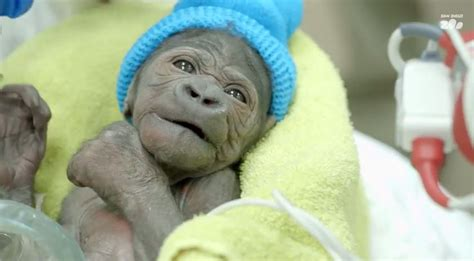 Pneumonia After C Section by Amazing Stories Around The World Baby Gorilla Delivered