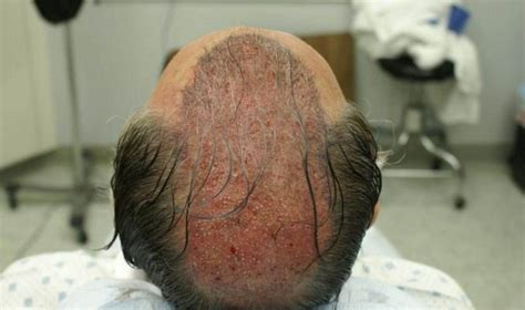 new hair replacement technology 2014 new developments in the science of hair restoration the