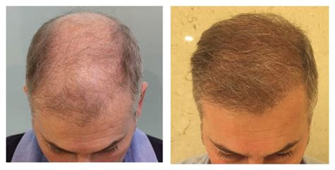 hair transplant in the philppines cost hair transplant costs in the philippines hair transplant
