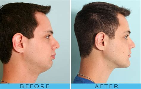 short hair for overbite weak jaw line jaw surgery pictures diet risks swelling offline