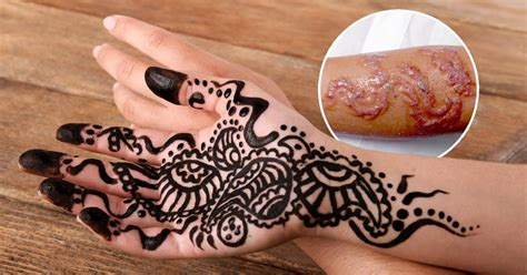 Ash Kumar Explains How To Tell If Someone S Using Illegal Black Henna Removal 2
