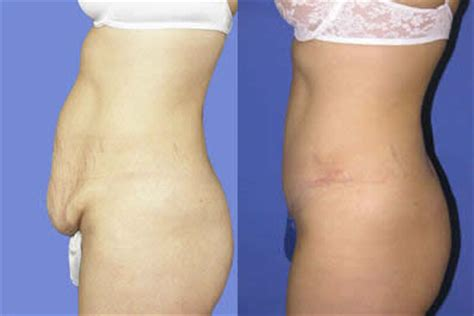 Can I A Tummy Tuck After C Section by Tummy Tuck Michigan Abdominoplasty Surgery St Clair Shores