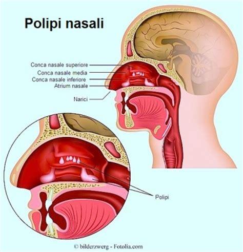 gonfiore all interno della dolore al naso cause e rimedi