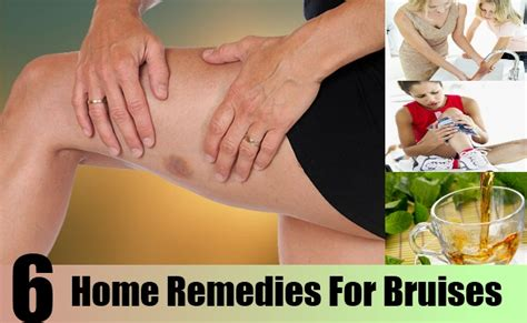 top 6 home remedies for bruises treatments and