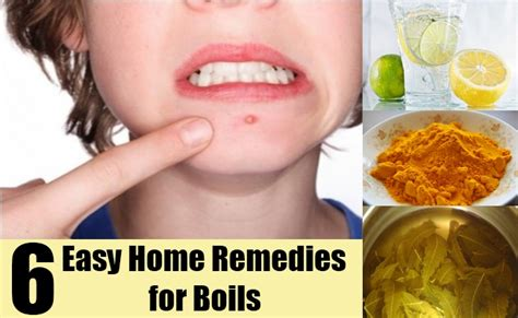 image gallery home remedies for boils