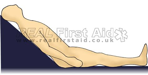 Semi Reclining Position by Casualty Positioning Real Aid