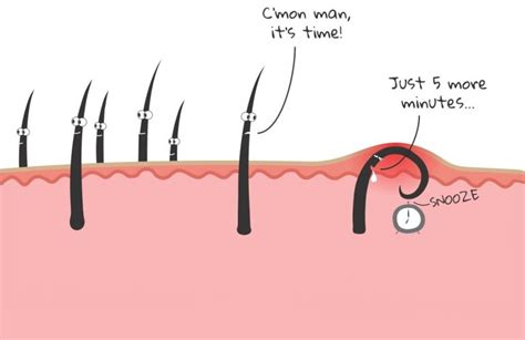 ingrown hair diagram how to get rid of ingrown hair causes prevention