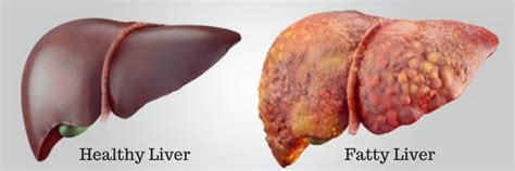 healthy fats for your liver how to fix your fatty liver fix your fatty liver