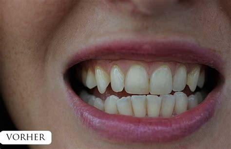 Zähne Polieren Beim Zahnarzt by Z 228 Hne Bleachen Endlich Wei 223 E Z 228 Hne Vickyliebtdich
