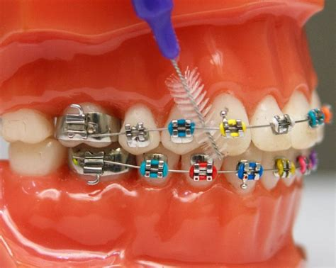 color of braces what color braces should i get and what colors to avoid