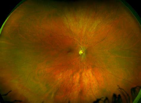 Retinal Imaging Fee