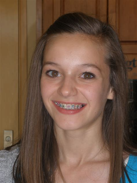 young teen girl face with braces braces for two may 2010